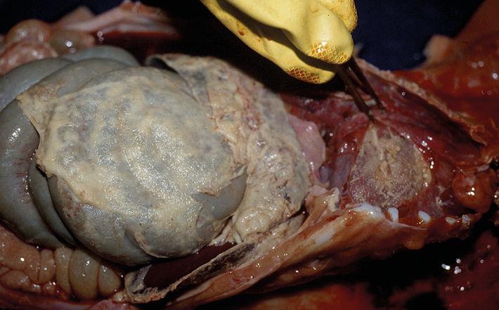 GD causes peritonitis
